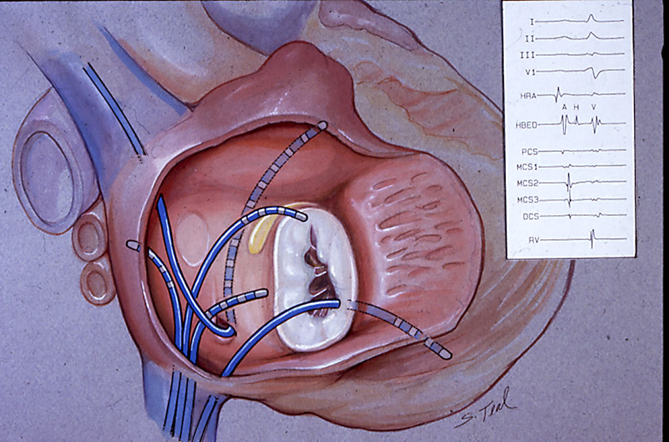 Cardiac catheterization - Wikipedia