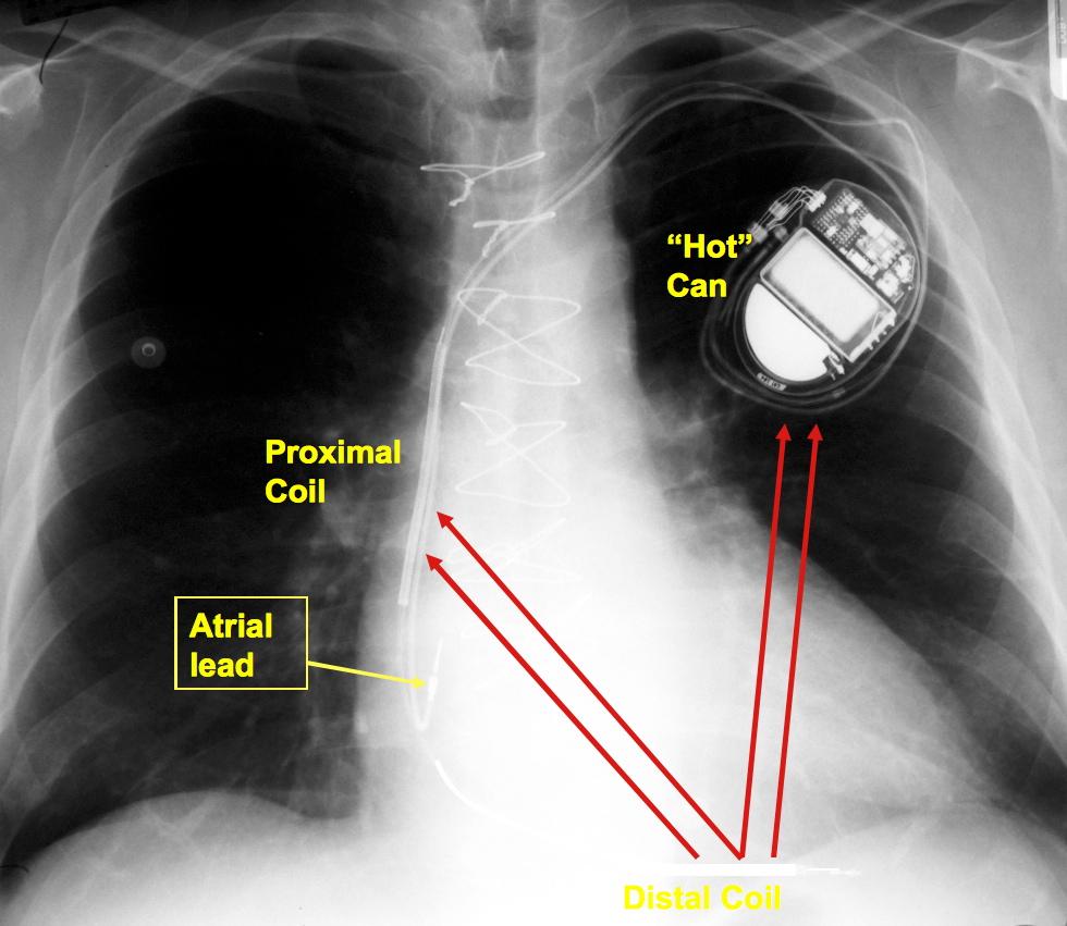 cardiac pacing and icds