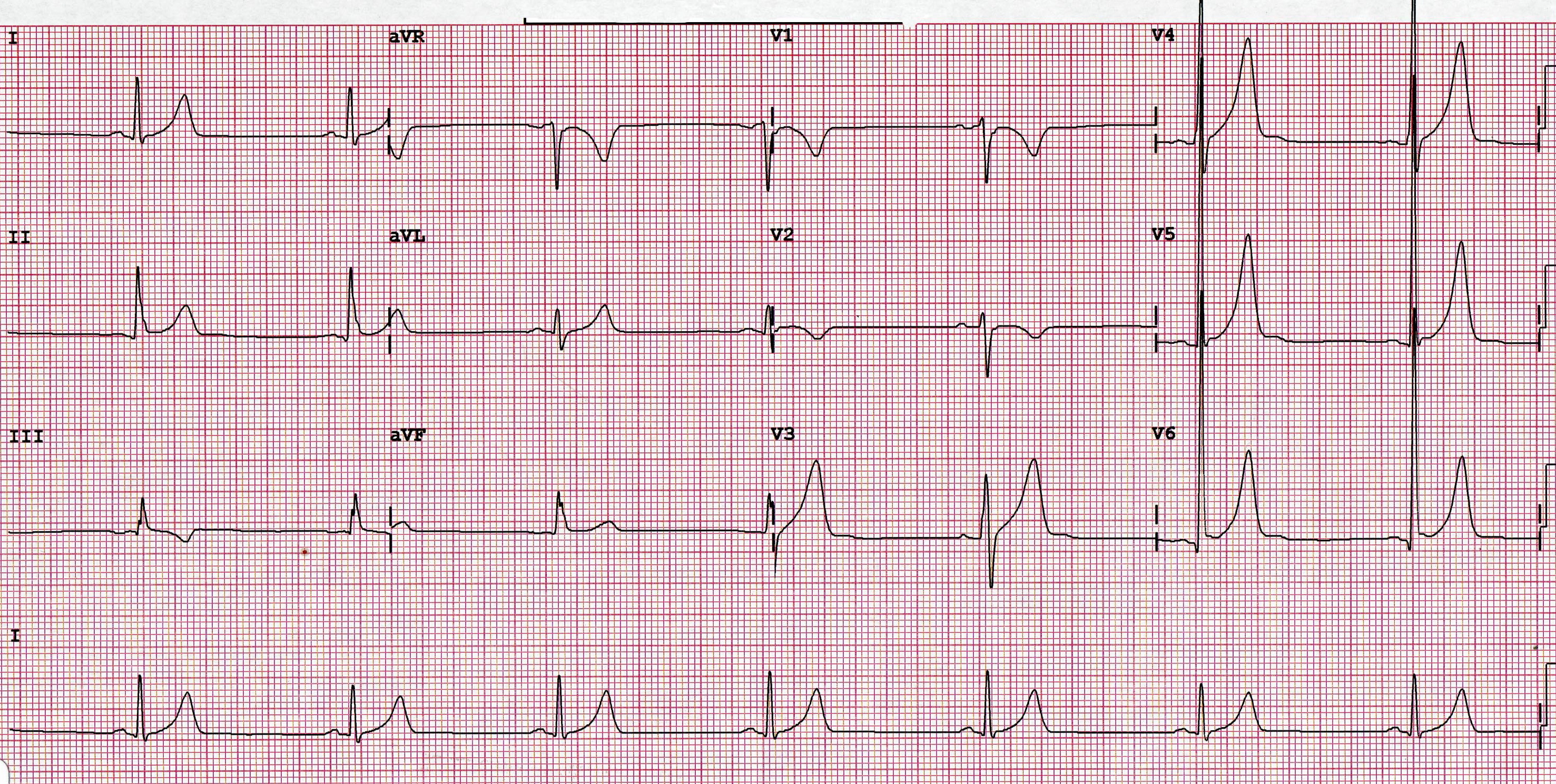 Whats a normal heart rate here geenschuldenfo Images