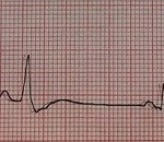 Benign PVCs: A heart rhythm doctor's approach.