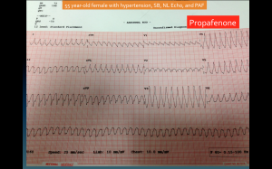1:1 Atrial Flutter due to propafenone