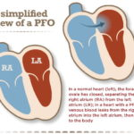 Young people, stroke and a hole in the heart (PFO)